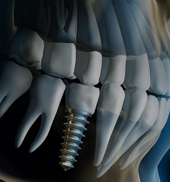 dental-implants-img