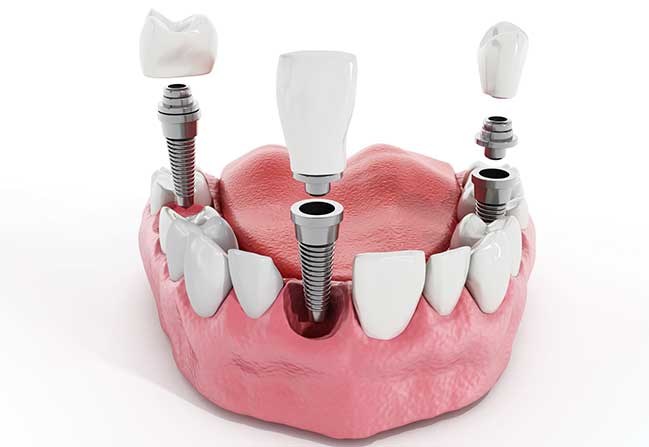 Dental Implants | North Calgary Dentist | Northern Hills Dental