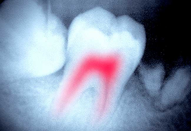 Root Canal Therapy | North Calgary Dentist | Northern Hills Dental