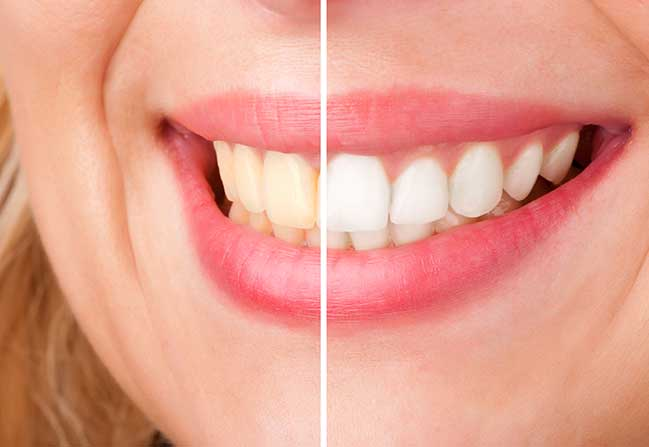 Teeth Whitening | North Calgary Dentist | Northern Hills Dental